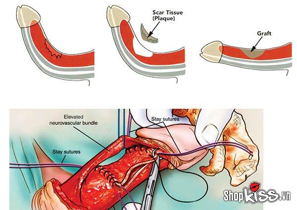 Điều trị dương vật bị cong bằng phương pháp phẫu thuật