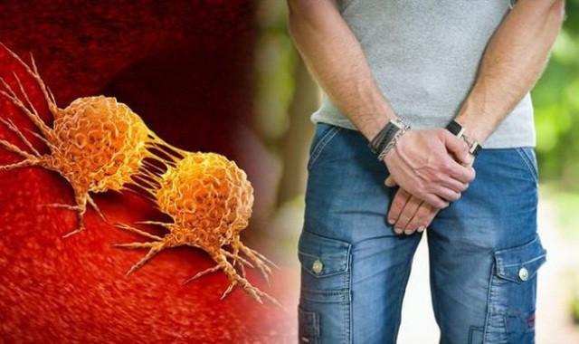 Lợi ích của quan hệ tình dục nhằm tránh ung thư tuyến tiền liệt ở nam giới