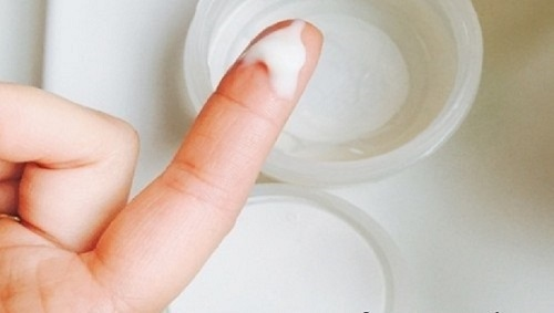 Tinh trùng vón cục là gì
