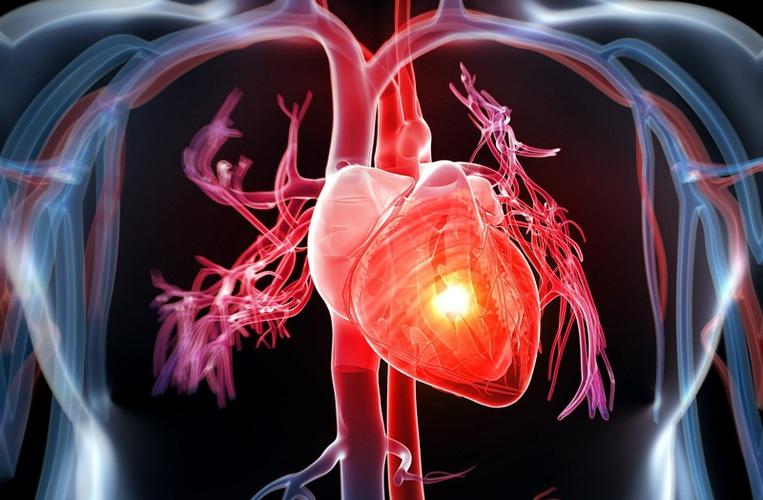 Dấu hiệu bệnh tim mạch.