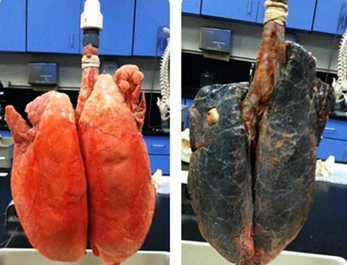 lá phổi của người nghiện thuốc và người bình thường để thấy cai thuốc lá cần thiết cnagf sớm càng tốt