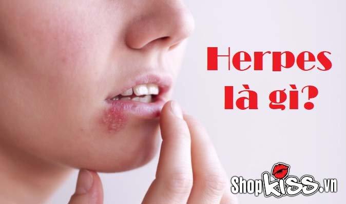Herpes là gì có nguy hiểm không?